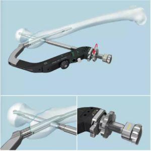 O intertravamento de pregos ortopédicos implante ósseo femoral a fixação da fratura cirúrgica