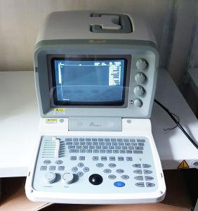 Varredor do ultra-som de Portbale Digital do Ce (WHY9618F mais)