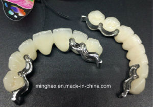 Puente de Co-Cr Pfm con accesorios realizados en laboratorio dental Minghao