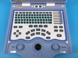 precio de fábrica China máquina de ultrasonido portátil 2D/Cardíaca Para Ob/Gyn/Diagnóstico de urología