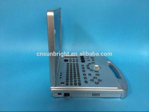 заводская цена медицинской 2D 3D ноутбук доплеровского ультразвукового машины Sun-906s