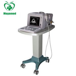 Mon-A001A L'équipement médical portable B Prix de scanner à ultrasons