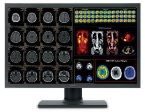 (Jusha-C26) de Monitor Pacs van de Kleur CT/Mr