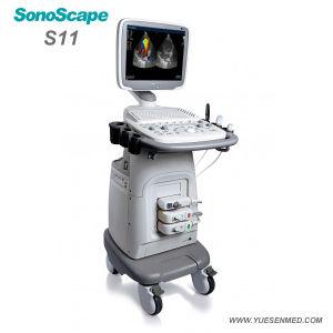 طبّيّ [سنوسكب] [س11] متحرّك حامل متحرّك لون [دولّبر] ما فوق الصّوت آلة