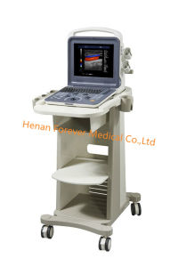 128 성분 초음파 휴대용 초음파 스캐너 진단