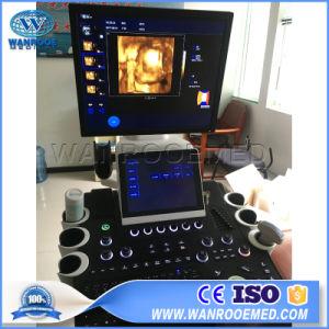 Usc900 totalmente digital portátil color Doppler ultra-som rolante máquina do sistema de diagnóstico