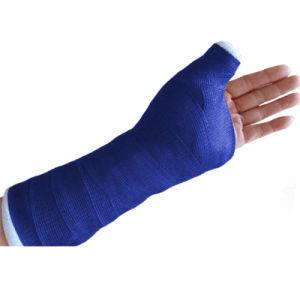 Hoge Rigidness die snel de Orthopedische Gietende Band van de Glasvezel verhardt
