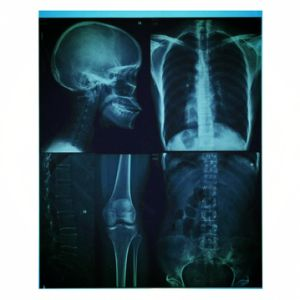 X-ray Blue Film/ Medical Film jet d'encre