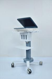 Preço da máquina de ultra-som do carrinho com a Workstation