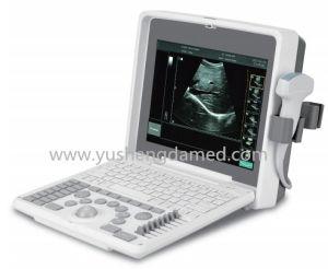 Preiswertestes Cer-anerkannter beweglicher Ultraschall-Scanner