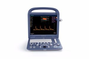 Ultra-som totalmente digital 4D Color Doppler Sonoscape S2