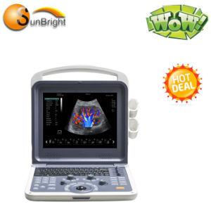 Sun-906e hochwertiges förderndes Cer-bewegliche Gefäßfarbe Doppler