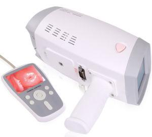 Mslce04 Digital Venta caliente Vagina colposcopio