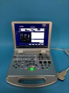 Sun-906s медицинское оборудование портативных цветового доплера 3D портативных ультразвуковых