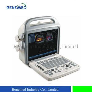 Popular escáner ultrasonido portátil Doppler Color