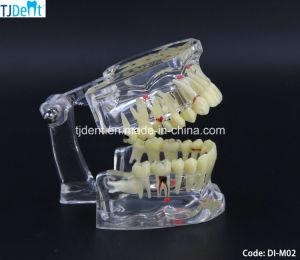 Zahnmedizinisches Othodontic Behandlung-Anatomie-Unterrichts-Studien-Zahn-Modell (DI-M02)