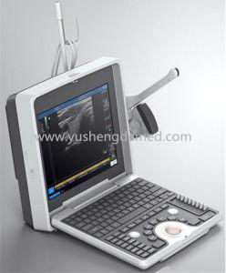 Hoher Spitzenmedizinische Ausrüstungportable-Ultraschall