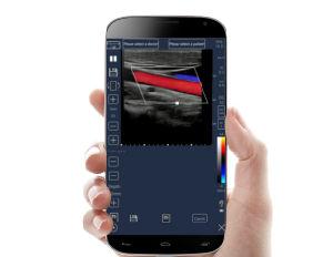 C Meditech Digitalização a cores de tela sensível ao toque do dispositivo portátil ultra-sonografia Scanar Aprovado pela CE