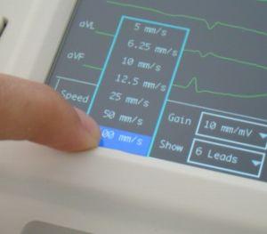 Elettrocardiografo DA Canali Riposo/Digitale/6/Betrüger-Note Screenekg-6012