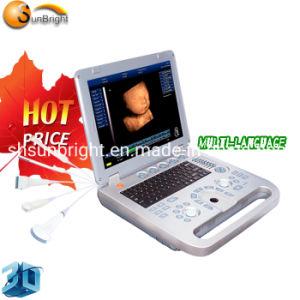 Medical Machine échographiques 3D/échographie Doppler couleur portable Msk