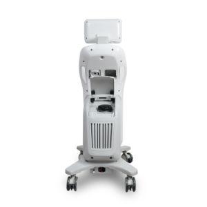 Liposonix Hifu, das Maschine für Körpergewicht-Verlust abnimmt