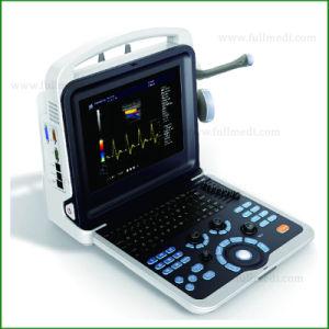 Venta caliente Hand-Carried 4D del sistema de diagnóstico por ultrasonido Doppler Color FM-580P