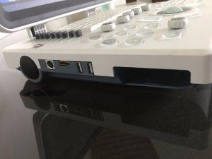 Bateria incorporada scanner de ultra-som portátil com interface em vários idiomas
