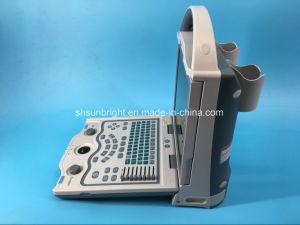 Sol-800W negro veterinaria portátil de ultrasonido para vender