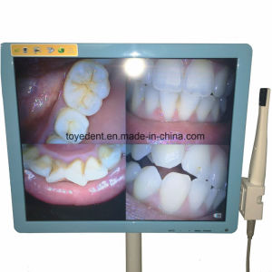 17インチLCDのモニタが付いている500のメガピクセル歯科内部の口頭カメラ