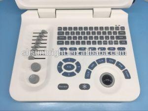 Ветеринарный цифровой ультразвуковой диагностики для цветового доплеровского картирования щитка приборов
