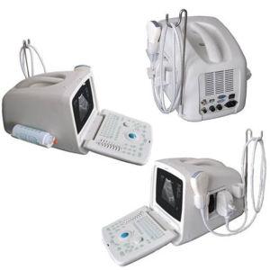 B, B/B, B/M, Scanner van de Ultrasone klank van de Wijze van M de Draagbare