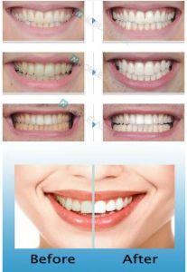 810nm 980nm Branqueamento Dentario Laser De Diodo Laser De Diodo