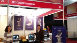 Scanner de ultra-som 4D populares melhor do que Chison