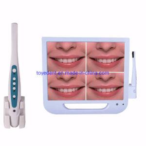 Caméra USB dentaire oral avec moniteur 17 pouces
