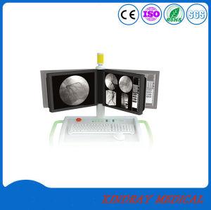 Médicales des rayons X à haute fréquence numérique mobile machine C-Arm