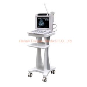 Aprovado pela CE baseada no PC do sistema de ultra-som scanner de ultra-som portátil (YJ-U318)