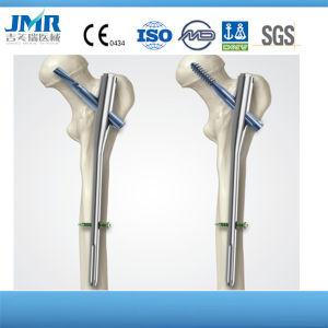 De orthopedische Chirurgische Spijkers van het Roestvrij staal van het Titanium van het Been van het Trauma Tibial Met elkaar verbindende Intramedullary