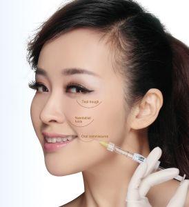 Marca CE Singfiller relleno dérmico de ácido hialurónico inyección arrugas antienvejecimiento