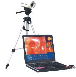 Colposcopeの製造者Mslce01からの販売のためのデジタルラップトップのColposcopeの/Colposcopy装置