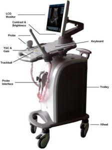 Equipamento médico, 32 Chennal scanner de ultra-sonografia Doppler móvel digital