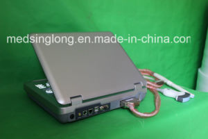 Preto e branco de diagnóstico da máquina de ultra-som Mslcu17 / scanner de ultra-som portátil / máquina de ultra-sonografia clínica