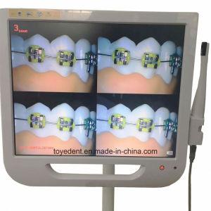 ワイヤーで縛られたWiFiの17インチLCDの監視テレビの歯科Intraoralカメラ