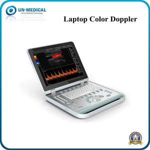 O sistema de ultra-som Doppler a cores do computador portátil