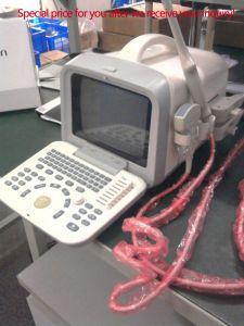Полностью цифровая ПК и портативных ультразвуковых Портативный сканер (ПОСЛЕ ПОРОГА-US6602)