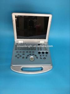Самый доступный по цене Cardiac 3D 4D цветового доплеровского ультразвукового аппарата с Pw по часовой стрелке