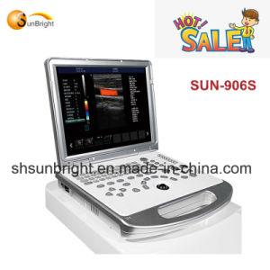 Sun-906s cardiaco/ultrasuono portatile di Doppler di colore eco di Vascular/Ob/Gyn 3D 4D