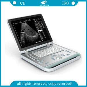 AGBu007入院患者の白いデジタル超音波のスキャンナーのポータブルのラップトップ