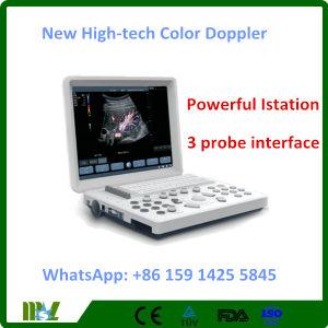 Nuova macchina portatile alta tecnologia di ultrasuono di Doppler di colore (MSLCU26)