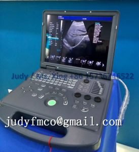 低価格のラップトップカラー超音波の診断システム