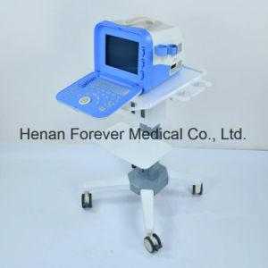 医療機器のデジタル超音波のスキャンナー